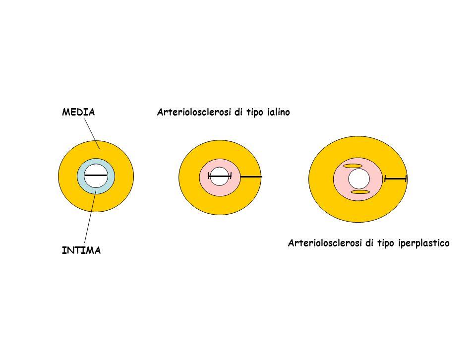 MEDIA INTIMA Arteriolosclerosi di tipo ialino Arteriolosclerosi di tipo iperplastico