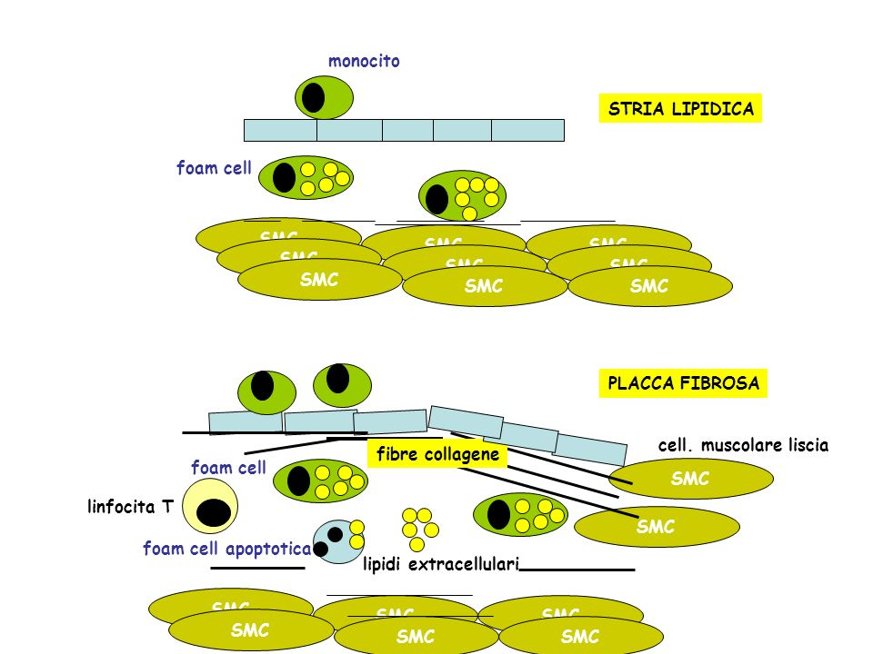 monocito STRIA LIPIDICA. foam cell. SMC. foam cell. lipidi extracellulari. fibre collagene. PLACCA FIBROSA.