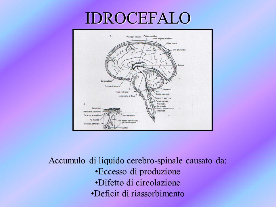 IDROCEFALO Accumulo di liquido cerebro-spinale causato da: