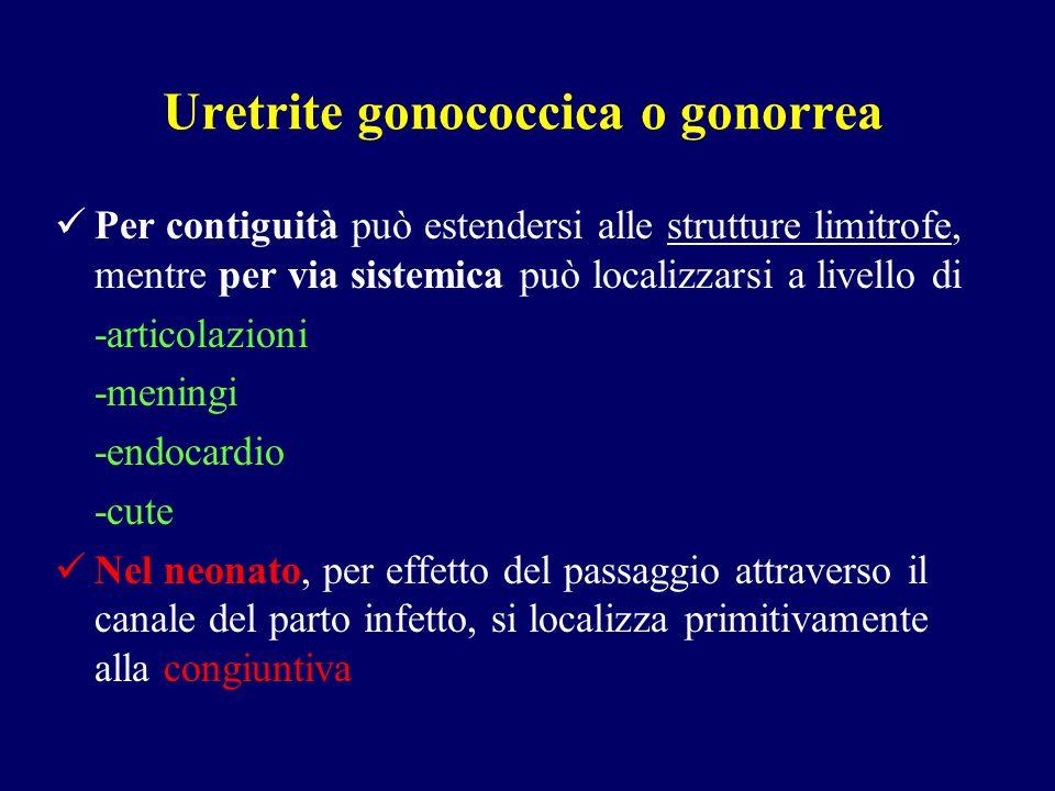 Uretrite gonococcica o gonorrea