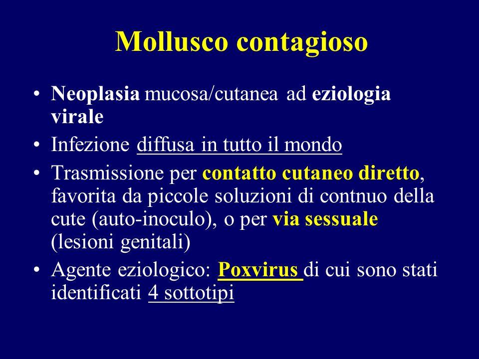 Mollusco contagioso Neoplasia mucosa/cutanea ad eziologia virale