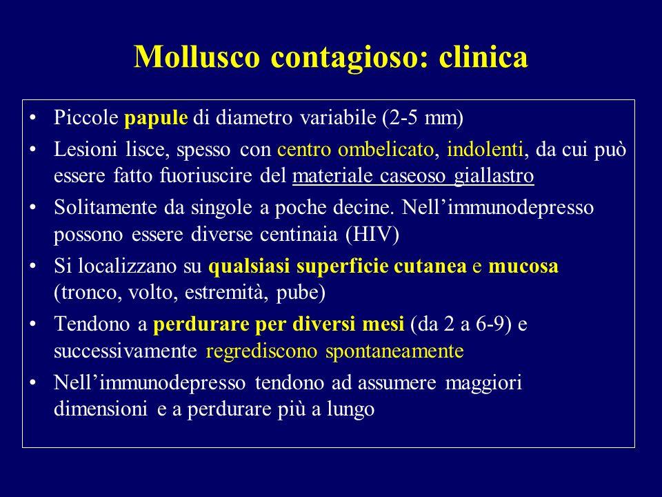 Mollusco contagioso: clinica