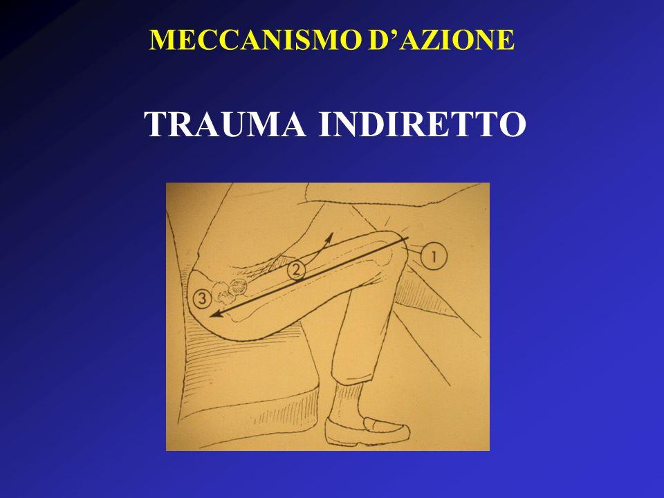 MECCANISMO D'AZIONE TRAUMA INDIRETTO