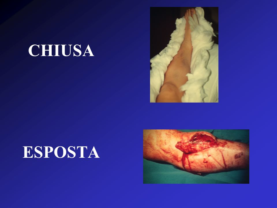 CHIUSA ESPOSTA