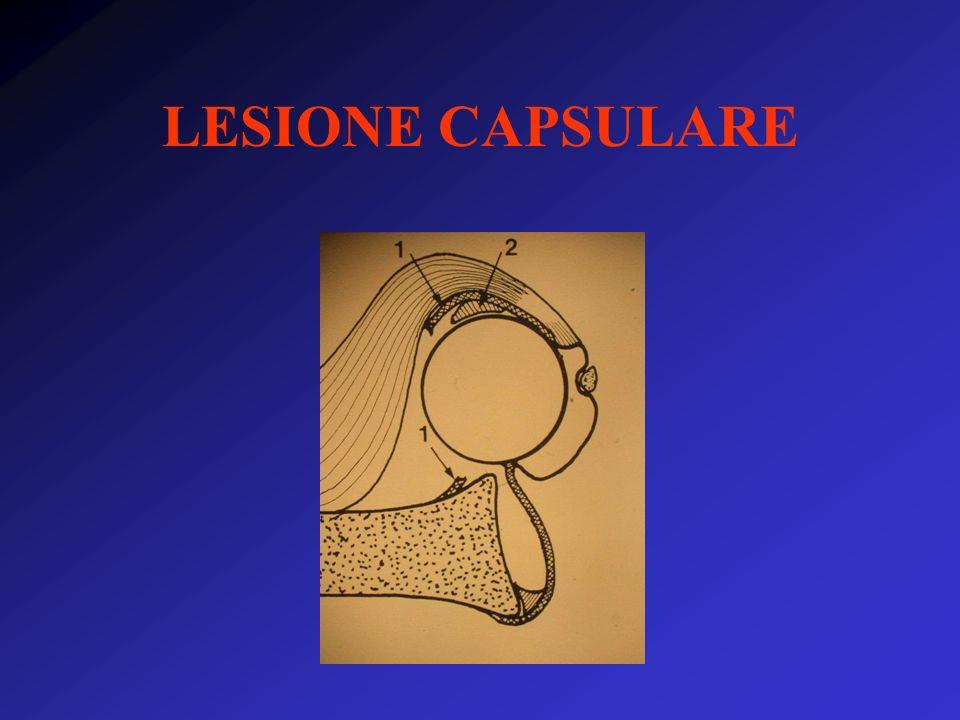 LESIONE CAPSULARE