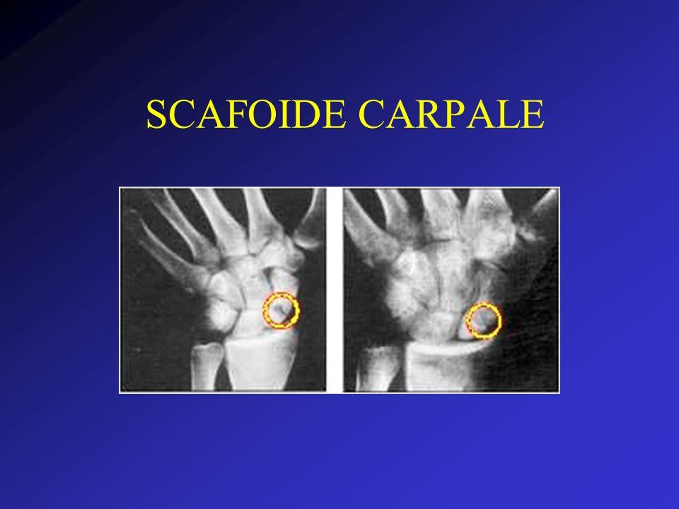 SCAFOIDE CARPALE