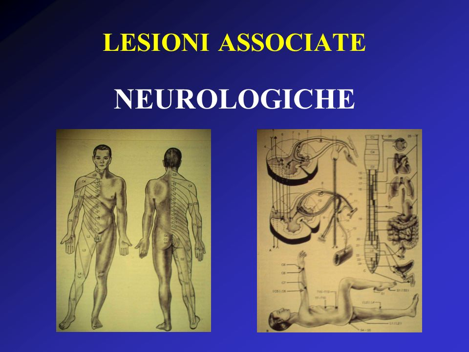 LESIONI ASSOCIATE NEUROLOGICHE