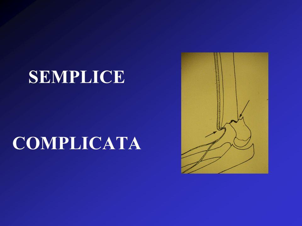 SEMPLICE COMPLICATA