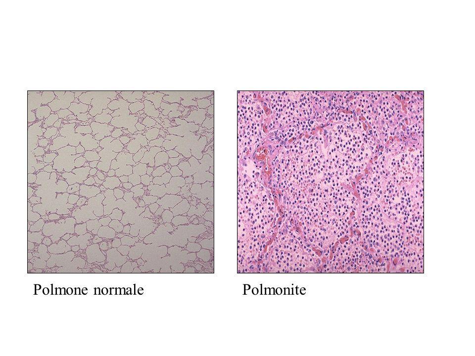 Polmone normale Polmonite