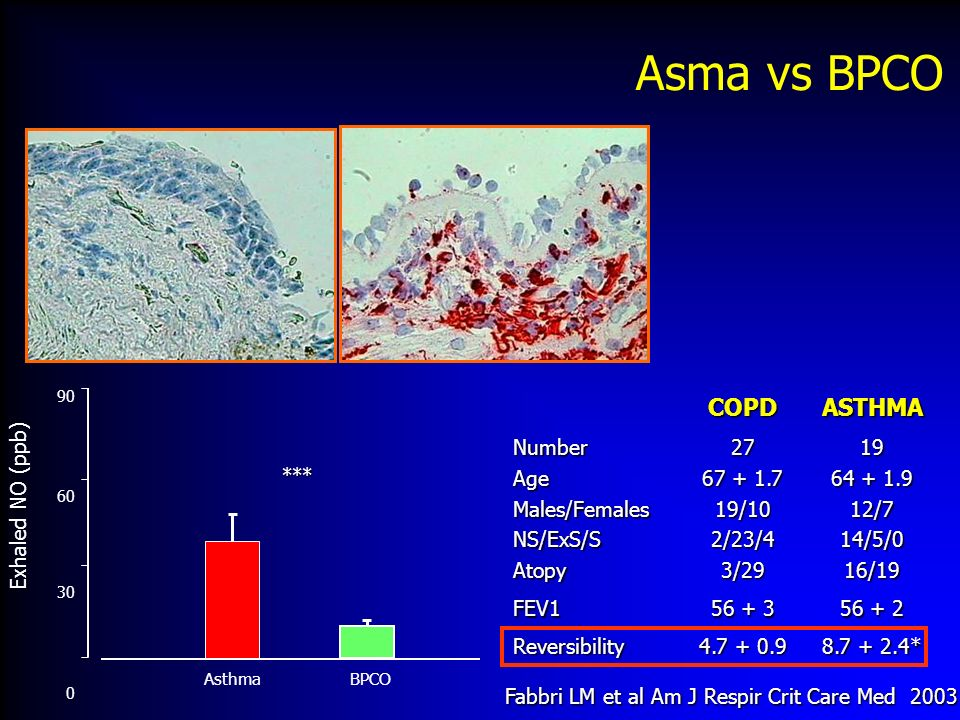 Asma vs BPCO COPD ASTHMA Number Age Males/Females NS/ExS/S Atopy 27