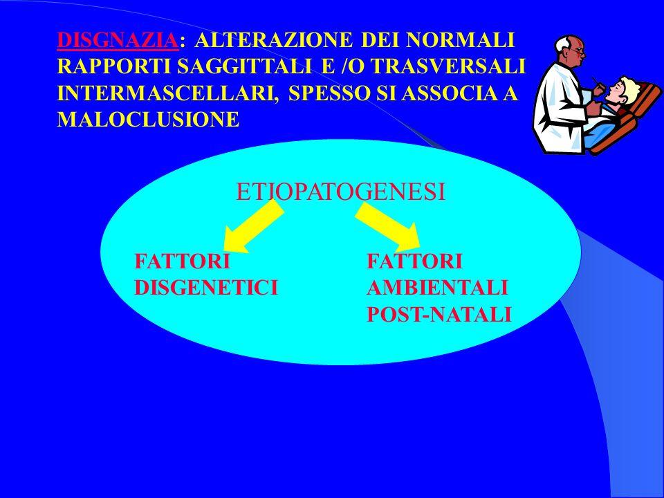 DISGNAZIA: ALTERAZIONE DEI NORMALI RAPPORTI SAGGITTALI E /O TRASVERSALI INTERMASCELLARI, SPESSO SI ASSOCIA A MALOCLUSIONE