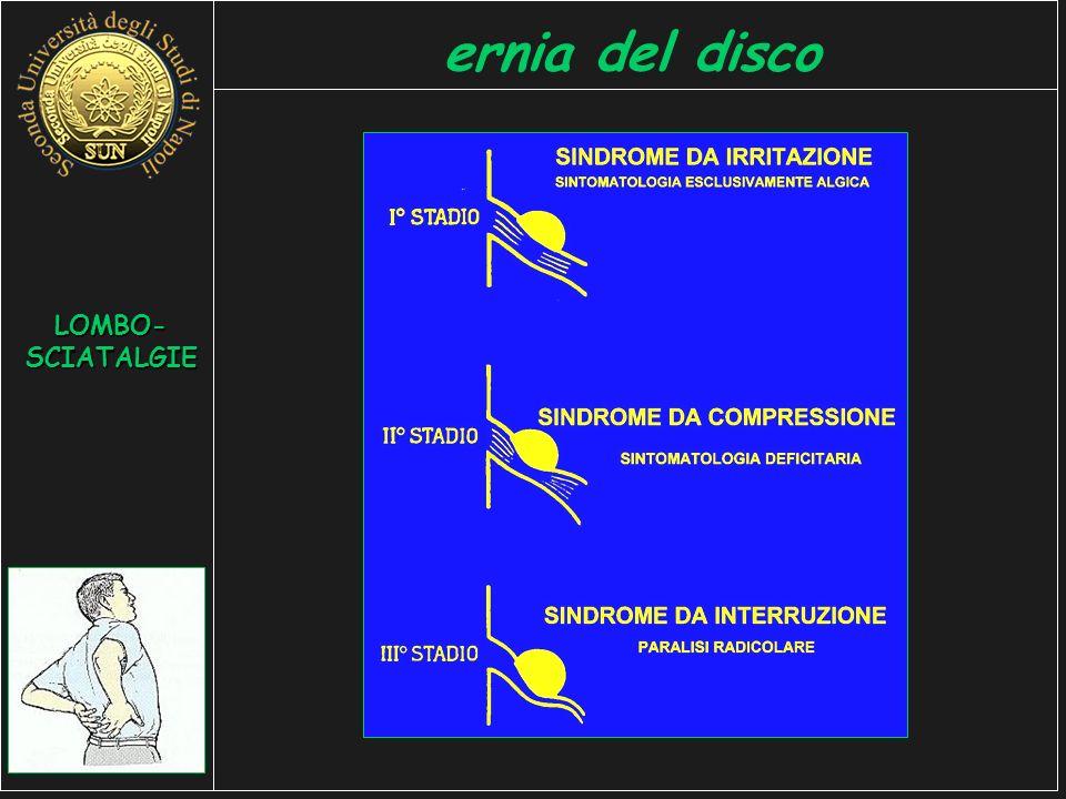ernia del disco LOMBO-SCIATALGIE