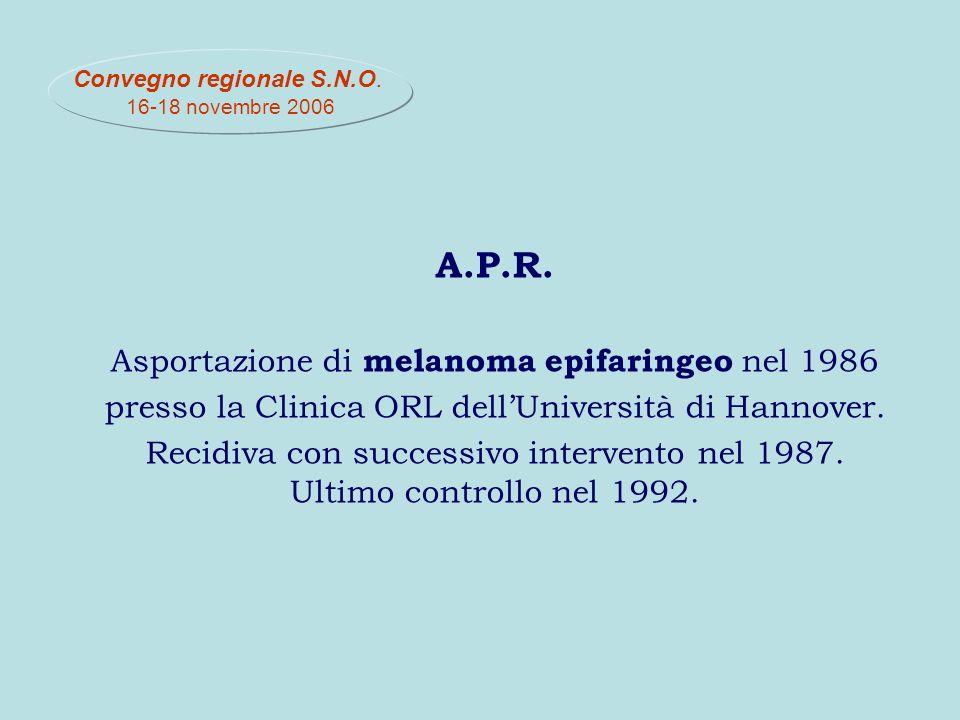 A.P.R. Asportazione di melanoma epifaringeo nel 1986