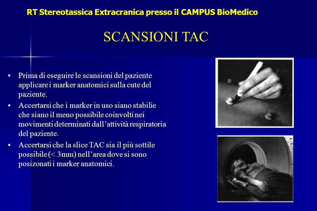 SCANSIONI TAC RT Stereotassica Extracranica presso il CAMPUS BioMedico