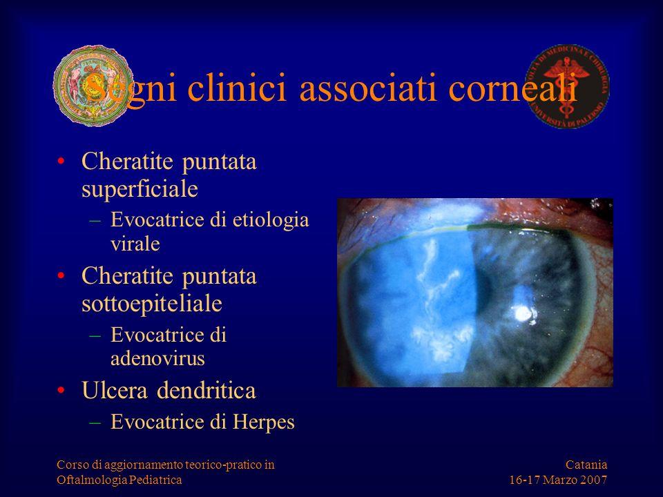 Segni clinici associati corneali
