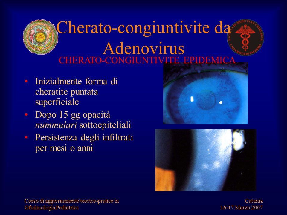 Cherato-congiuntivite da Adenovirus
