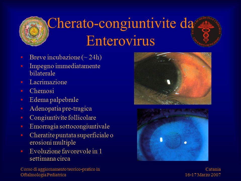 Cherato-congiuntivite da Enterovirus