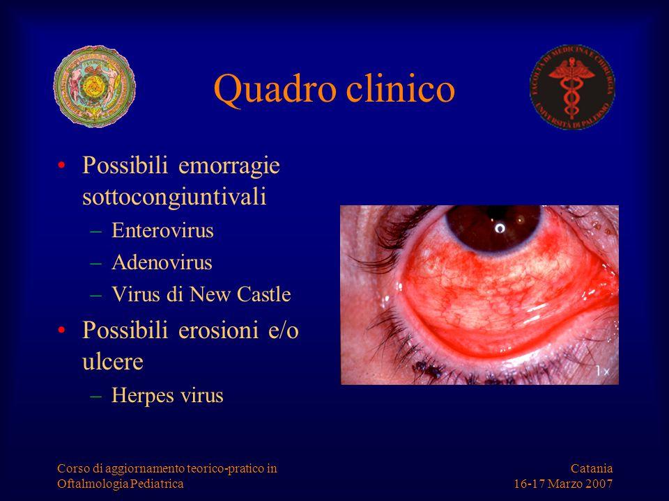 Quadro clinico Possibili emorragie sottocongiuntivali
