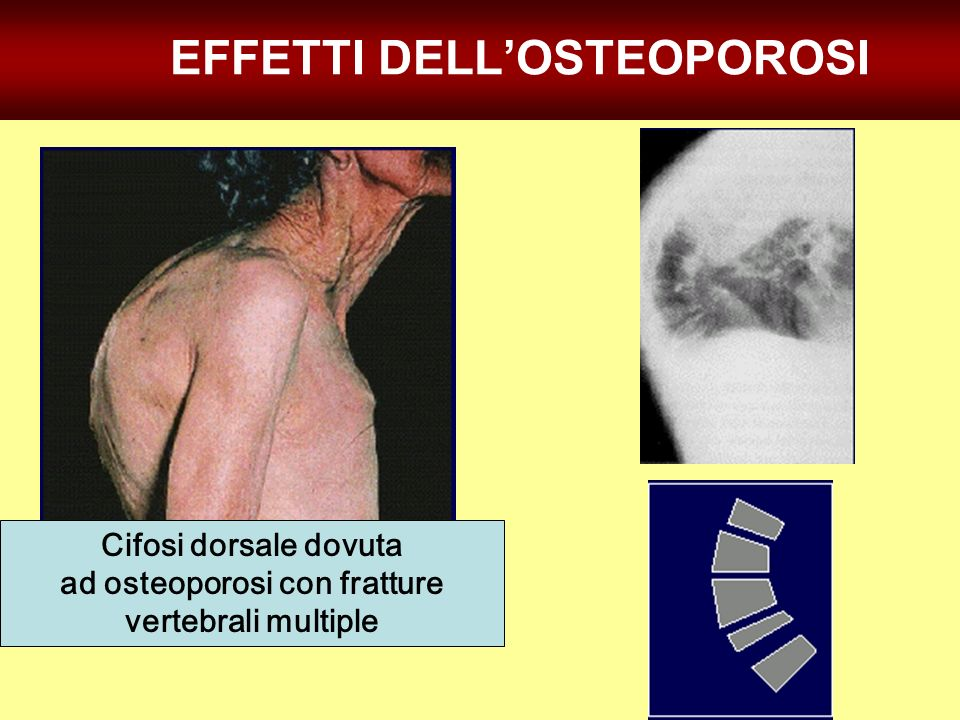 EFFETTI DELL'OSTEOPOROSI