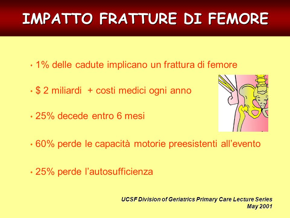 IMPATTO FRATTURE DI FEMORE