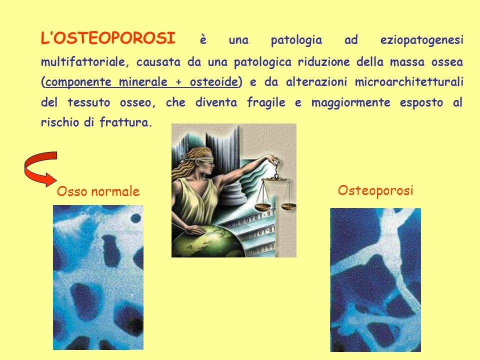 L'OSTEOPOROSI è una patologia ad eziopatogenesi multifattoriale, causata da una patologica riduzione della massa ossea (componente minerale + osteoide) e da alterazioni microarchitetturali del tessuto osseo, che diventa fragile e maggiormente esposto al rischio di frattura.