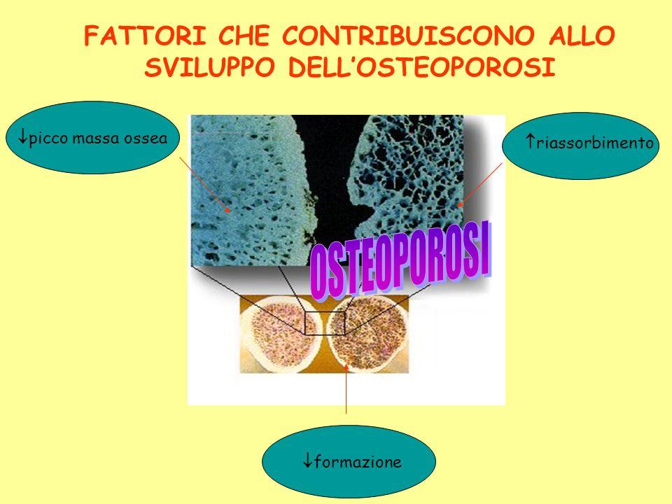 FATTORI CHE CONTRIBUISCONO ALLO SVILUPPO DELL'OSTEOPOROSI