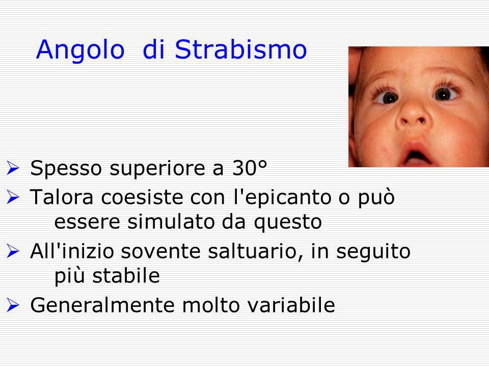 Angolo di Strabismo Spesso superiore a 30°