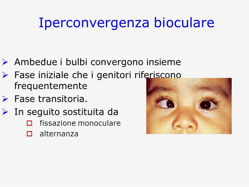 Iperconvergenza bioculare