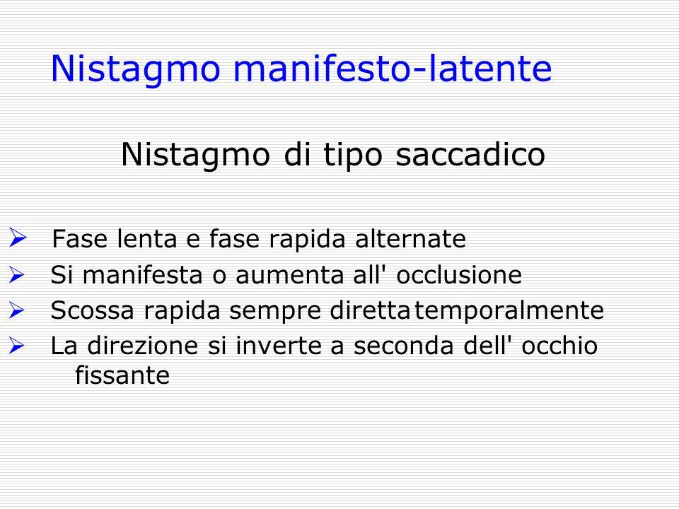 Nistagmo manifesto-latente