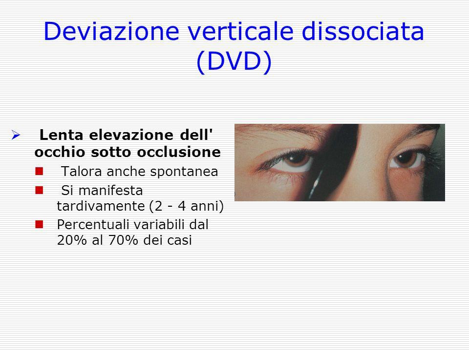 Deviazione verticale dissociata (DVD)