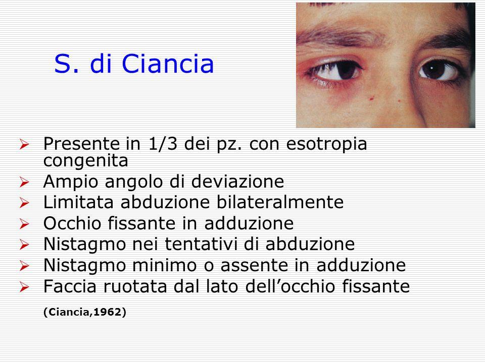 S. di Ciancia Presente in 1/3 dei pz. con esotropia congenita