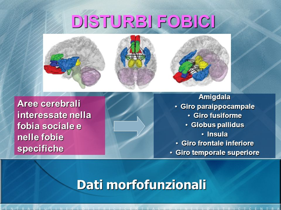 Giro frontale inferiore Giro temporale superiore
