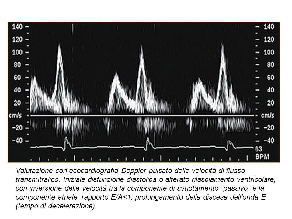 Valutazione con ecocardiografia Doppler pulsato delle velocità di flusso transmitralico.