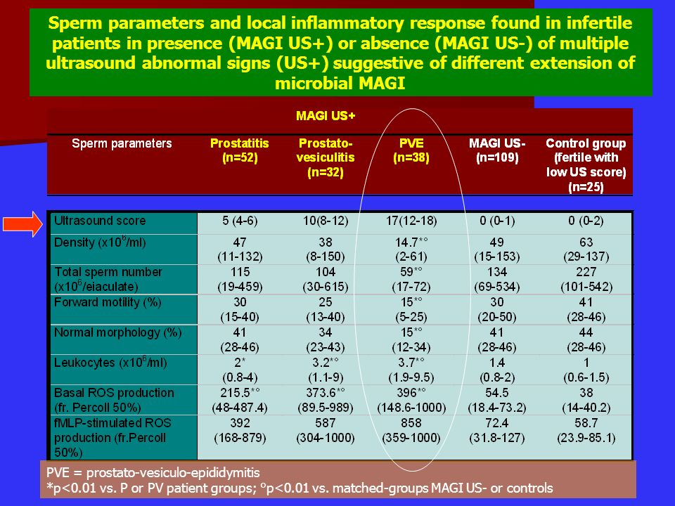 Sperm parameters and local inflammatory response found in infertile patients in presence (MAGI US+) or absence (MAGI US-) of multiple ultrasound abnormal signs (US+) suggestive of different extension of microbial MAGI