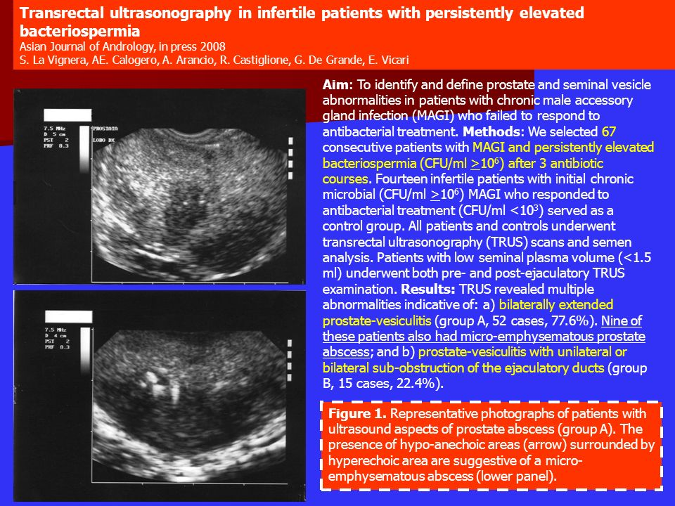 Transrectal ultrasonography in infertile patients with persistently elevated bacteriospermia