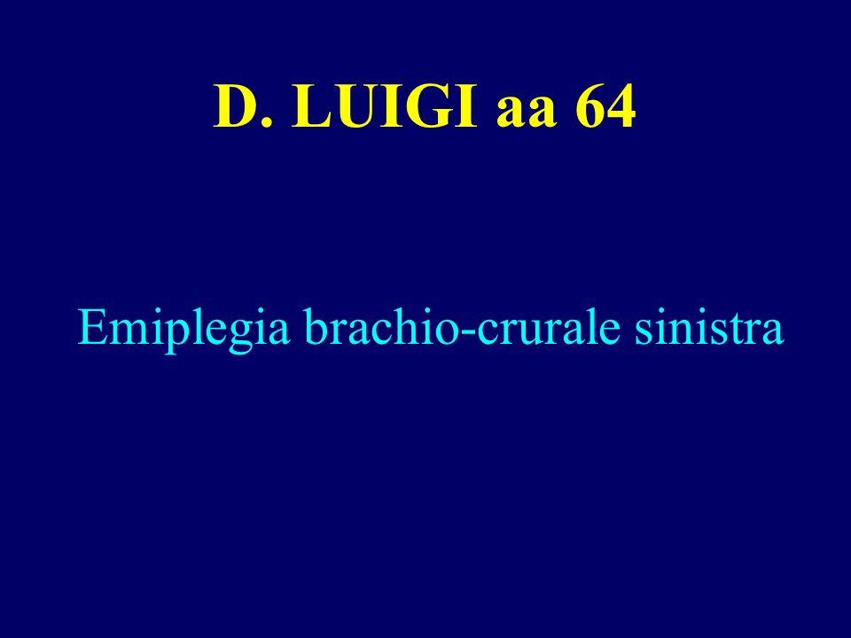Emiplegia brachio-crurale sinistra