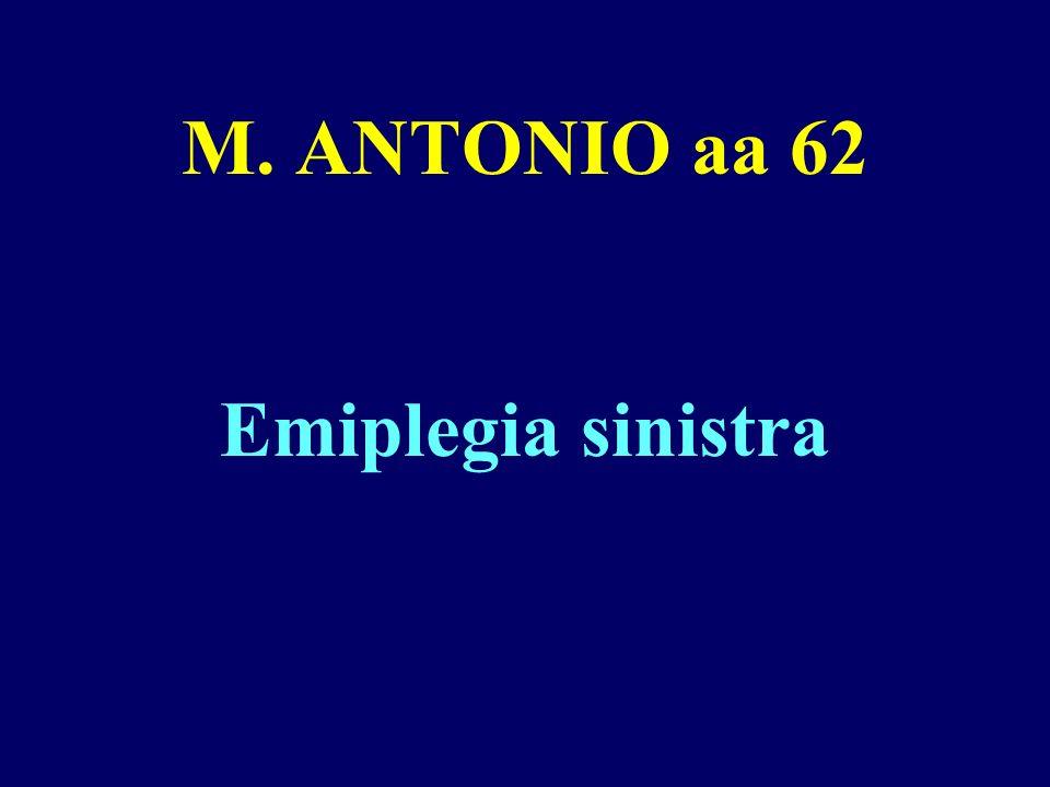 M. ANTONIO aa 62 Emiplegia sinistra