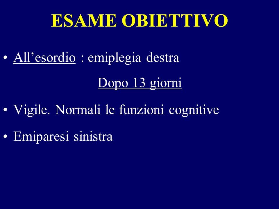 ESAME OBIETTIVO All'esordio : emiplegia destra Dopo 13 giorni