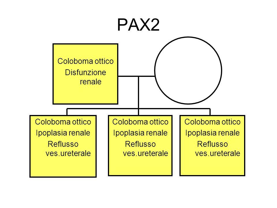 PAX2 Coloboma ottico Disfunzione renale Coloboma ottico