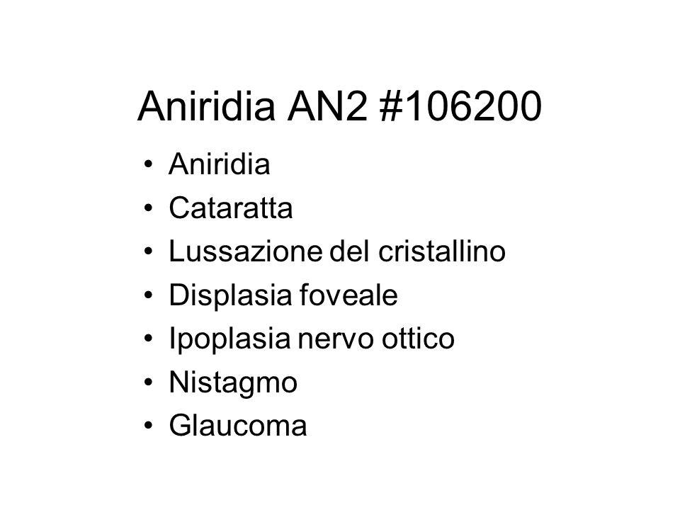 Aniridia AN2 #106200 Aniridia Cataratta Lussazione del cristallino