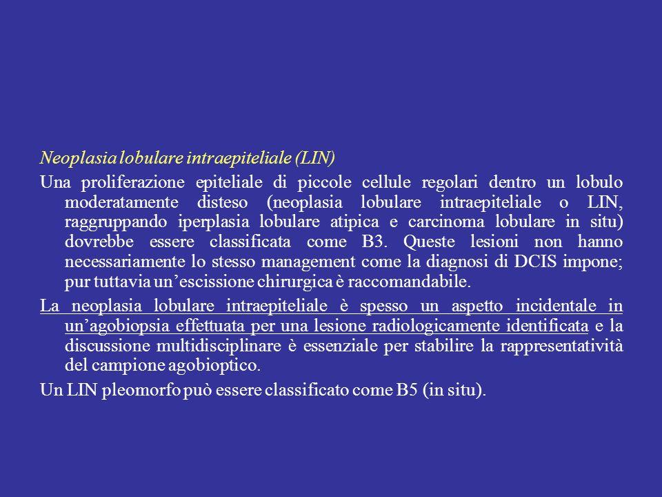 Neoplasia lobulare intraepiteliale (LIN)