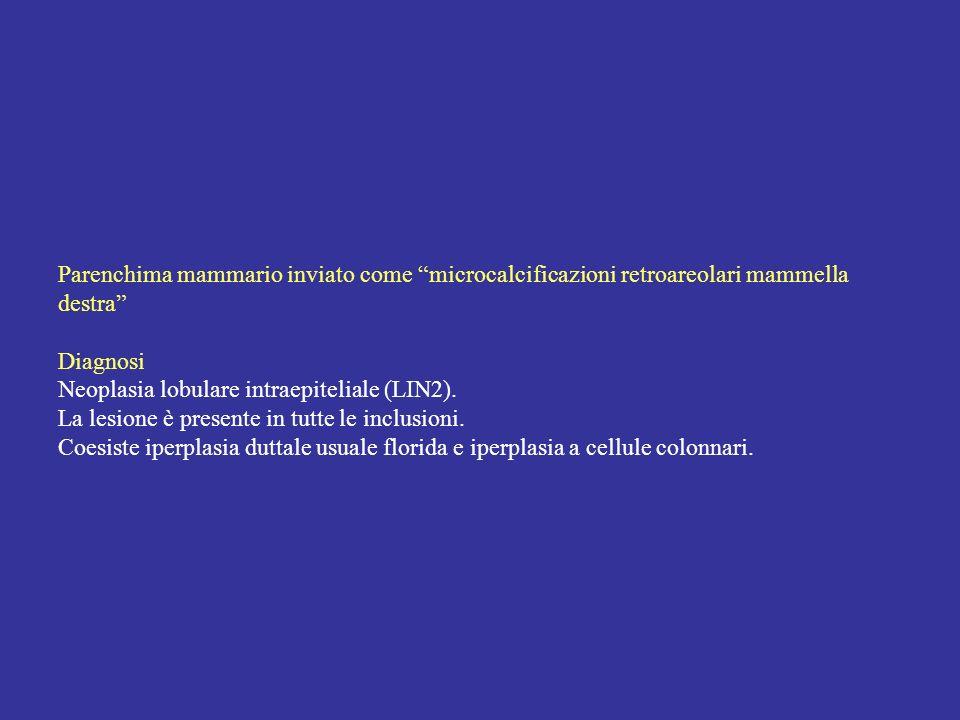 Parenchima mammario inviato come microcalcificazioni retroareolari mammella destra Diagnosi Neoplasia lobulare intraepiteliale (LIN2).