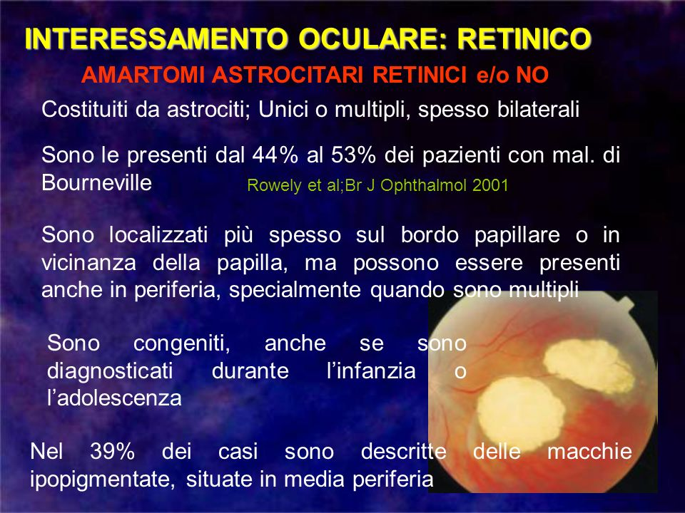 INTERESSAMENTO OCULARE: RETINICO