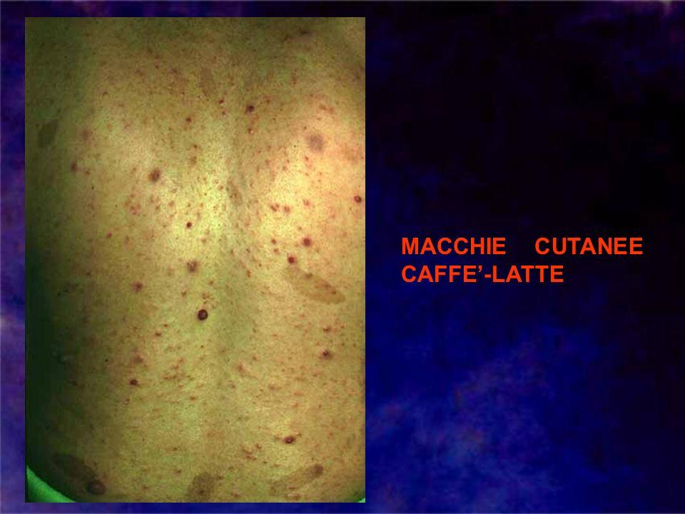 MACCHIE CUTANEE CAFFE'-LATTE
