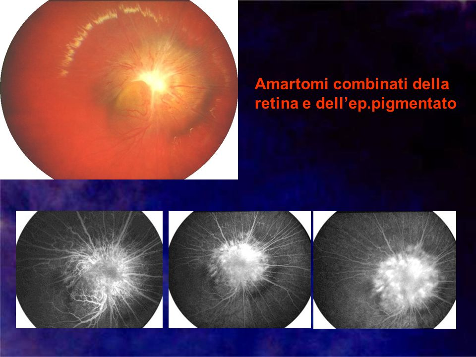 Amartomi combinati della retina e dell'ep.pigmentato