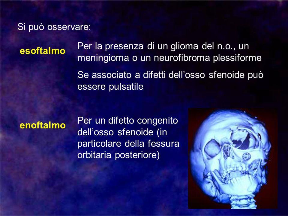 Si può osservare: Per la presenza di un glioma del n.o., un meningioma o un neurofibroma plessiforme.