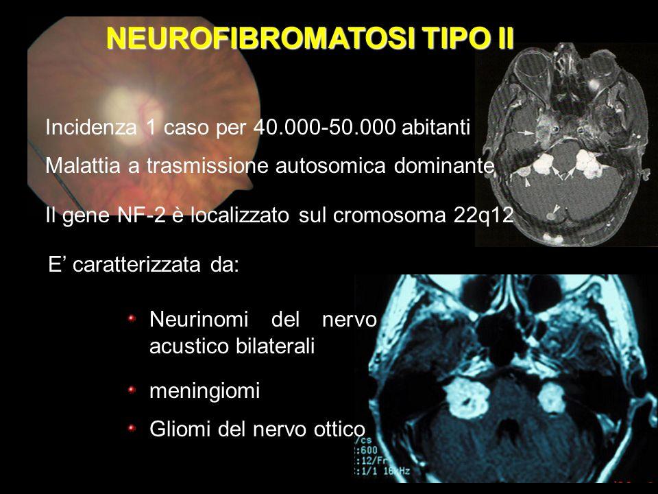 NEUROFIBROMATOSI TIPO II