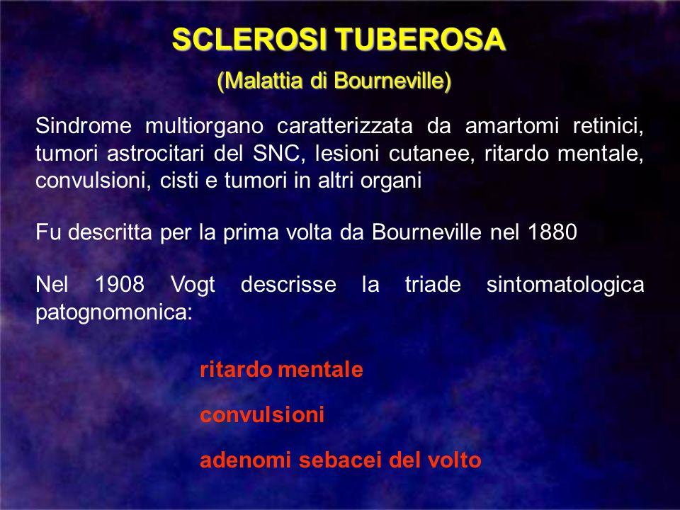 SCLEROSI TUBEROSA (Malattia di Bourneville)