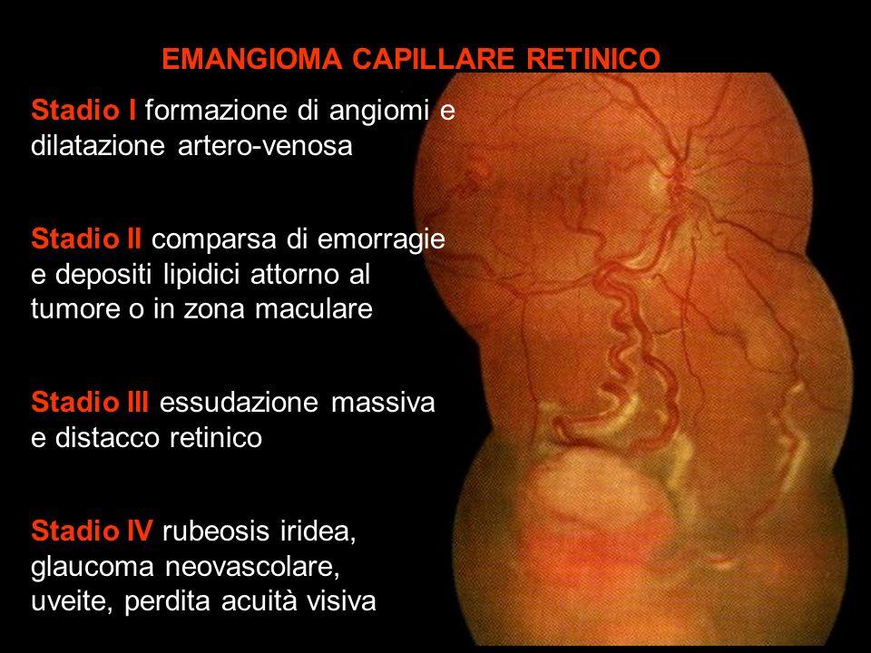 EMANGIOMA CAPILLARE RETINICO
