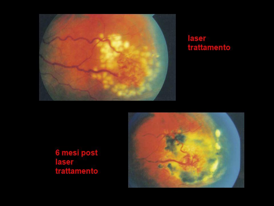 laser trattamento 6 mesi post laser trattamento